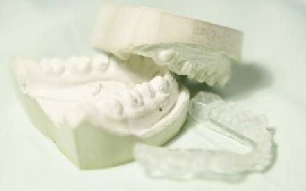 Zahnmodel mit Schiene/CMD